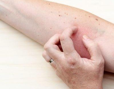 Treating Eczema in Older Adults in Oshkosh, WI