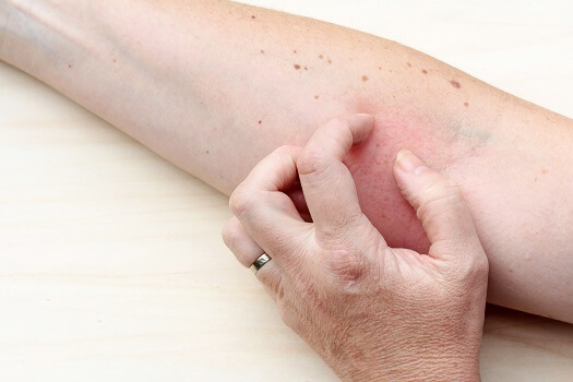 Treating Eczema in Older Adults in Oshkosh, WI